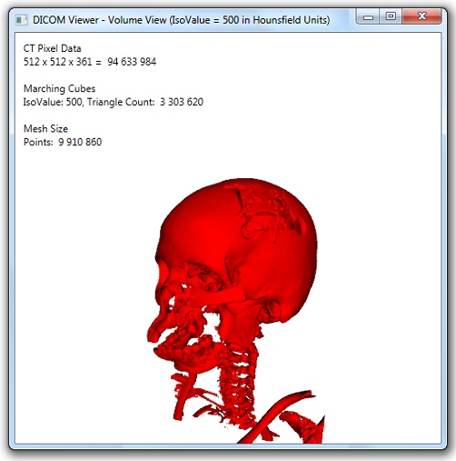 VolumeView: 3D representation of a CT Image Series
