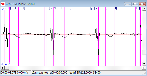 Screenshot - ecg.png