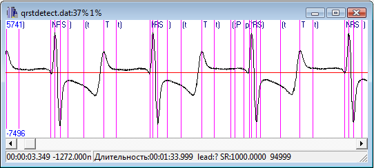 Biphasic peaked T waves