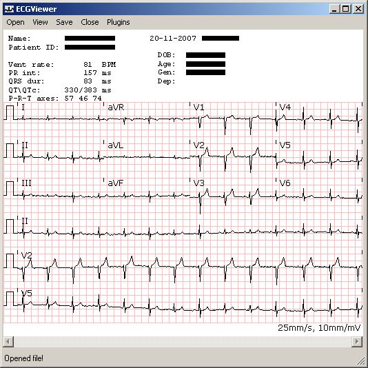 ECG Viewer provided by the C# ECG Toolkit