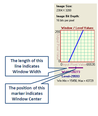 dicomImageViewer/WindowLevel1.png