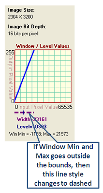 dicomImageViewer/WindowLevel2.png