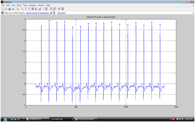 ECG Feature Extraction with Wavelet Transform and ST Segment